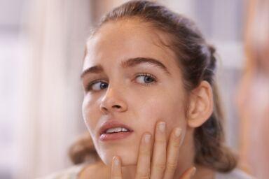 Угри на лице: причины появления