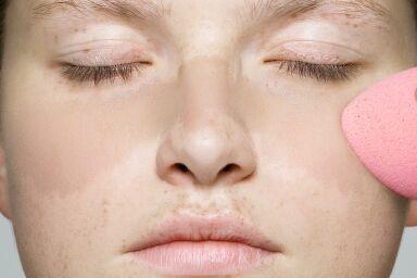 Игра в пятнашки: отчего появляются пигментные пятна на лице