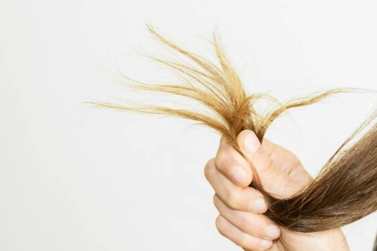 Характеристики сухой кожи головы