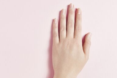 Сухая кожа рук, которая шелушится на ладонях: причины и что делать