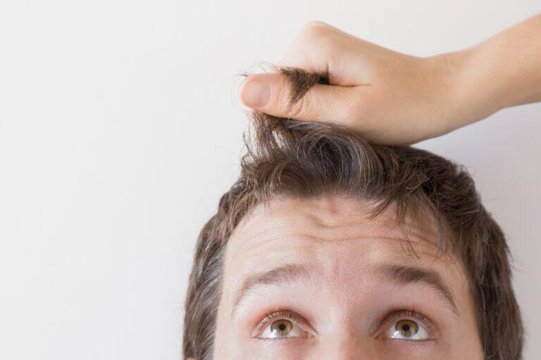 Почему выпадают волосы у мужчин, виды и признаки алопеции, как лечить и восстановить волосы