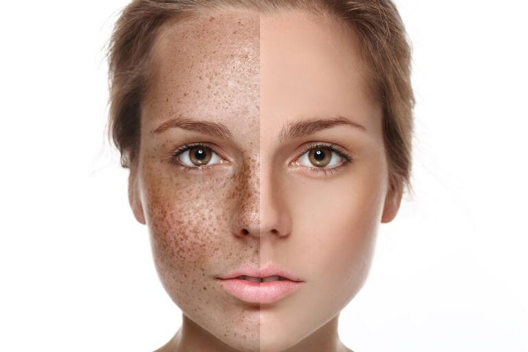 Крем против пигментации для кожи