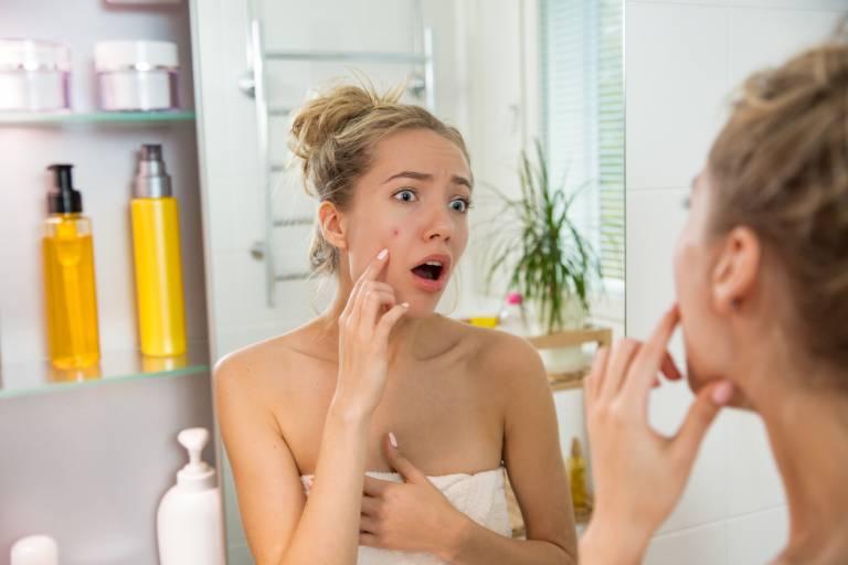 Женщина с проблемной кожей на лице