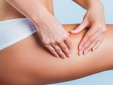 Крупный план бедра, девушка демонстрирует неровности на коже