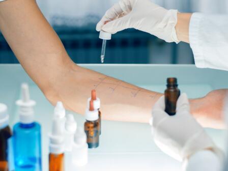 кожный тест на аллергию